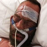 Roy Annesley spent three weeks in an induced coma in Concord Hospital.