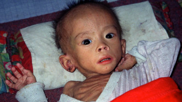 A starving North Korean child in 2002.