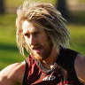 Essendon coach has described Heppell's foot injury as 'genetic'. But what does this mean for the team?