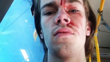 Sean Foster, the godson of Kevin Rudd, claims he was attacked while trying to stop another man removing rainbow 'Vote Yes' posters in Brisbane.
