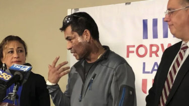 Mahud Villalaz, 42, of Milwaukee gestures to the second-degree burns on his face at a news conference one day after a man threw acid at him outside a restaurant.