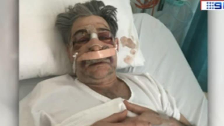 Edmund Pribitkin in hospital after the alleged assault.