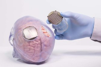 Two wireless brain implants help the system learn when the patient is trying to move their limbs.
