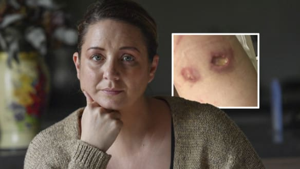 'It's moving around': Flesh eating ulcers in city's west