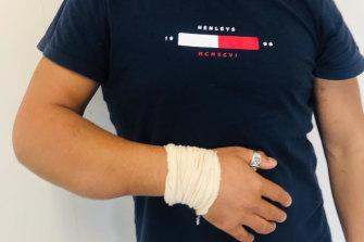 Mustapha Jdid's fractured elbow.