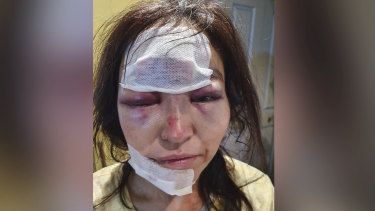 Mikato Pearce had to go to hospital for significant facial injuries after she was robbed on Wednesday night.