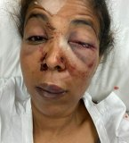 A photo supplied by the Greens, with Cr Mohamud's consent, of her serious injuries.