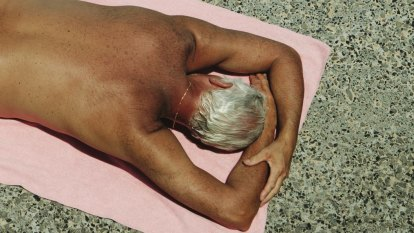Skin cancer message too important to let slide in our sun-kissed country