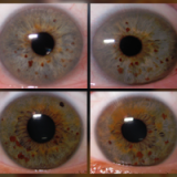 Examples of freckles on the iris.