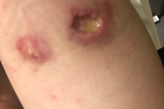 Buruli ulcer on a patient's arm.
