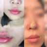Plastic surgeons forced to fix rising tide of botched cosmetic procedures