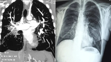 Adam Wells' lungs before his double lung transplant, and after.