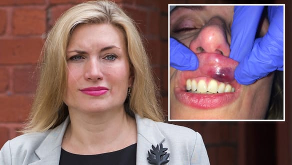 Thrown, punched in the head: Doctor who tried to help bleeding man claims police turned on her