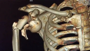 A medical scan showing Nik Dimopoulos' injuries.