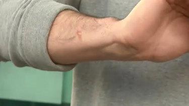 A close-up of Alex Kimberley's arm.
