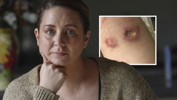 'It's moving around': Flesh-eating ulcer epidemic may have spread to Melbourne