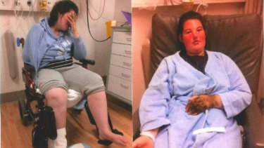 CRPS is described by experts as the most painful condition on earth.
