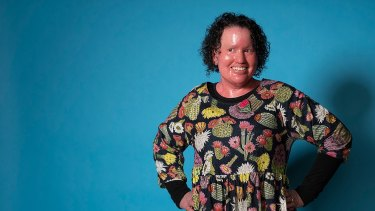 Disability advocate Carly Findlay is taking part in the panel Rethinking Beauty at the All About Women festival.