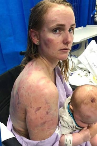 Kingaroy mother Fiona Simpson shielded her daughter as they were hammered by hail.
