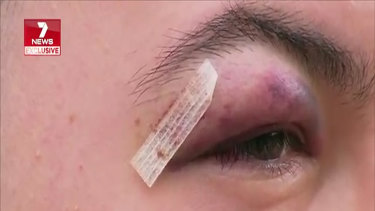 The 19-year-old man was glassed in the face with a beer bottle on Thursday night.