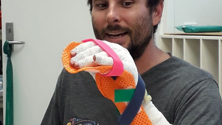 Reptile biologist Mathew Vickers showing his injuries after he was bitten by a grey reef shark off Lizard Island in far north Queensland.