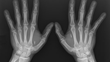 More Canberrans are purchasing microchips to implant in their bodies containing credit card details and security passes.