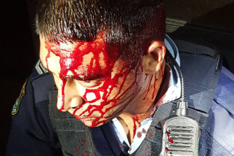 A 40-year-old senior constable was slashed in the head and shoulder.