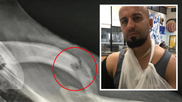 Mustapha Jdid's left collarbone was broken in August last year.