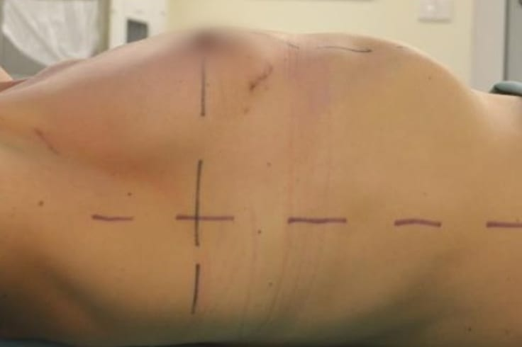 Temporary skin markings on a breast cancer patient.