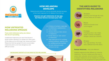 Melanoma is the fourth most common cancer type in Australia.