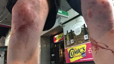 Steven Booth's knees after he was attacked outside The Comics Lounge in December 2016.