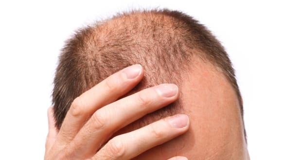 Hair implants refusal puts company in HIV discrimination spotlight