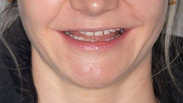 Laura's Gregory's teeth before she got veneers.