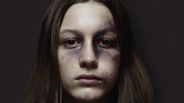 Images of bruised and battered school students will appear around Perth to raise awareness of the negative impact sharing and liking violent footage has on young people.