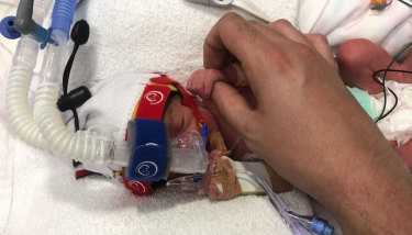 Georgia Harris was 975 grams when she was born three months ago.