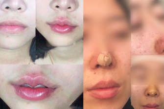 Images of cosmetic procedures posted to Lee Kim Tan's Facebook page.