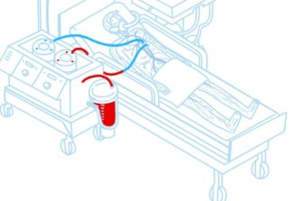 A depiction of the process from the website of the KrioRus cryogenics firm in Moscow.