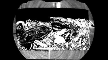 A still from the CT scan revealing the mummy's toes.