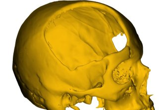 A 3D model of the damage to Brodie's skull which needed to be repaired.