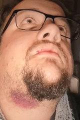 Alleged victim Ryan Naumenko.