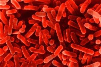 Legionnaires' disease.