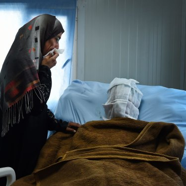 Sana Abdul Amir tends to her son Abdulrahman Abdulaaly, 18, who was being treated for burns to 60 per cent of his body in June 2017. He died days later.