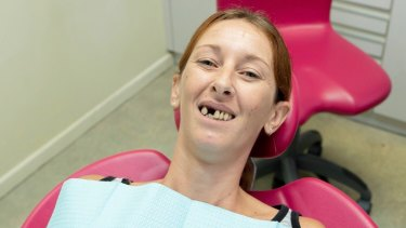 Natalie Pearn before she got her new dental bridge.
