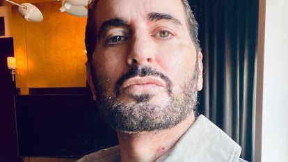 As Marc Jacobs admits to a facelift, is it better to be honest about cosmetic surgery?
