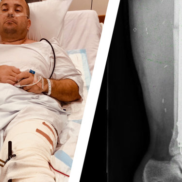 Bill Springett-Kelly in St Vincent's Hospital and an X-ray of his heavily swollen left leg, complete with titanium rods and screws, after the collision.