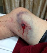 The injury suffered by Maurice Smith.