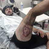 Gareth Clear, 36, of Bondi says his iPhone exploded, causing him serious burns, after he fell off his bike on the weekend.