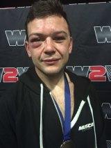 Michael Burgio, warrior.