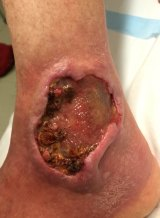 A flesh-eating ulcer on Jan Smith's ankle left her unable to walk.
