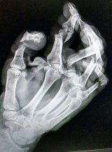 An X-ray of Dean Reid's mangled hand.